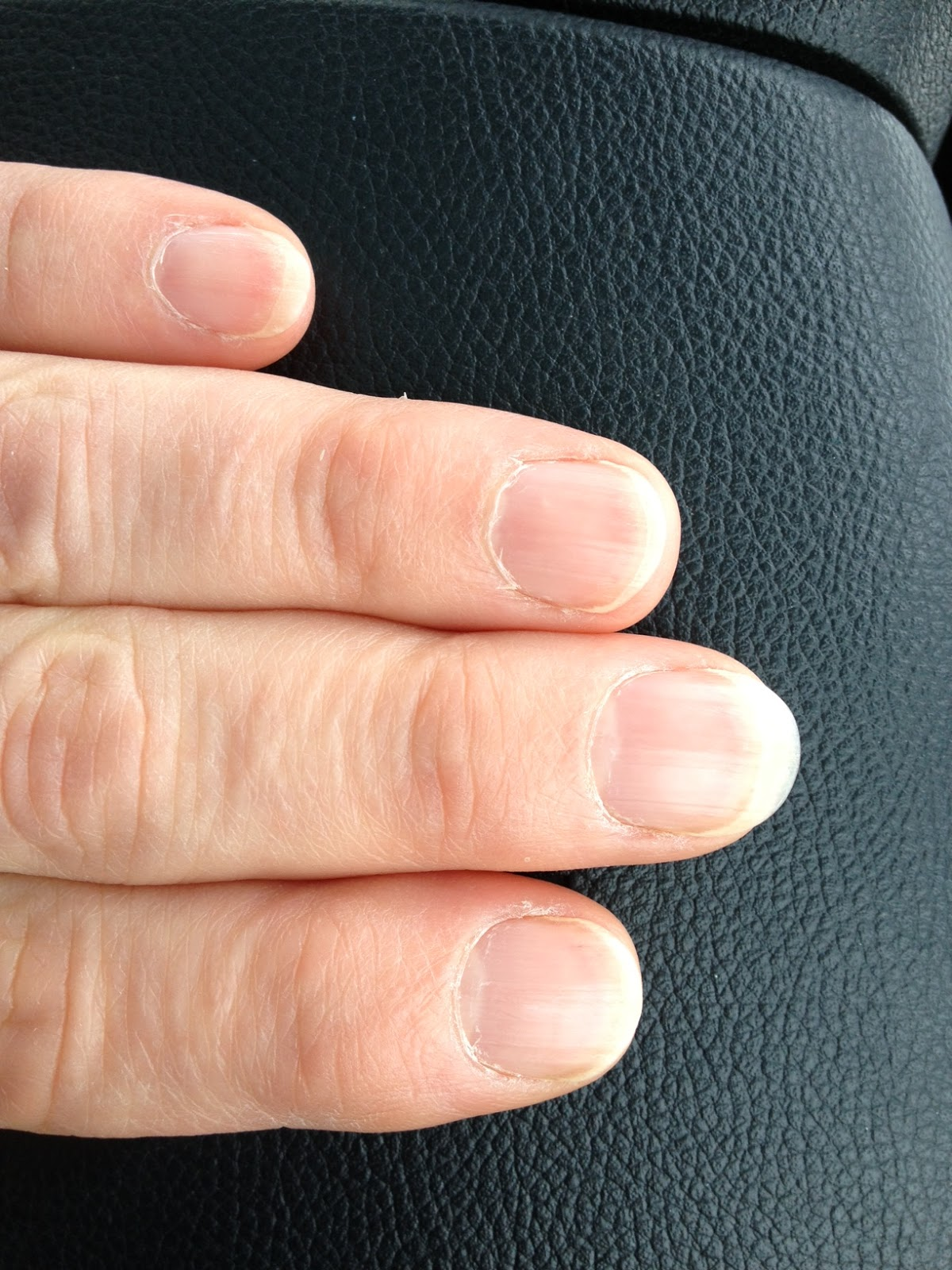No polish nails